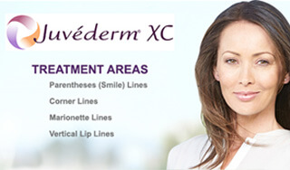 JUVEDERM-XC-treatments-in-michigan