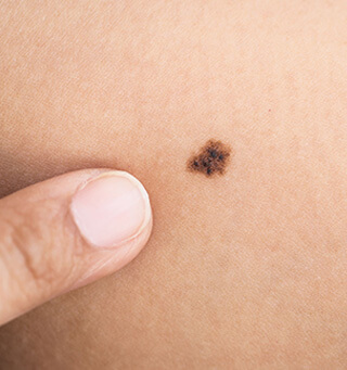 melanoma and skin cancer - dermatologist in michigan